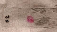 Cs 3 gram stain